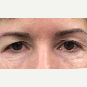 Temporal Brow Lift and Eyelid Rejuvenation: 45-54 year old female.  before 3847586