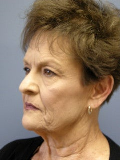 Face Lift, Platysmaplasty on 69-year-old Woman 1235577