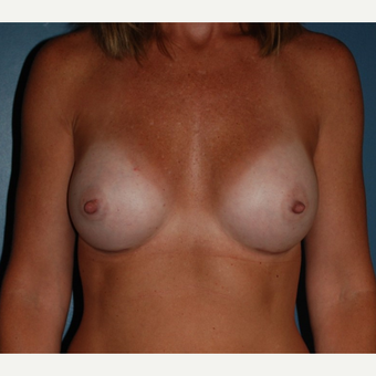 35-44 year old woman treated with Breast Augmentation after 3131975