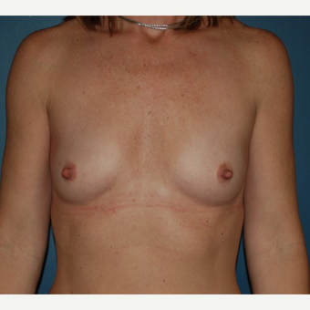 35-44 year old woman treated with Breast Augmentation before 3131975