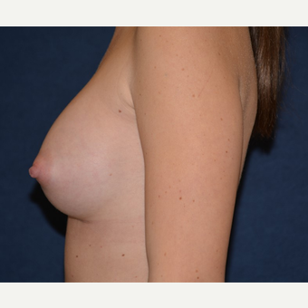 25-34 year old woman treated with Breast Augmentation after 3455336