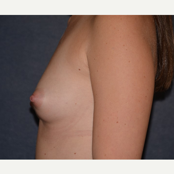 25-34 year old woman treated with Breast Augmentation before 3455336