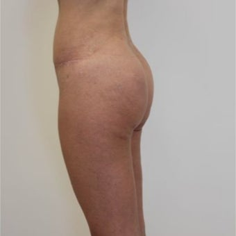 35-44 year old woman treated with Butt Implants after 1768719
