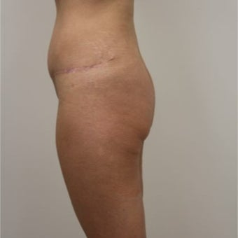 35-44 year old woman treated with Butt Implants before 1768719