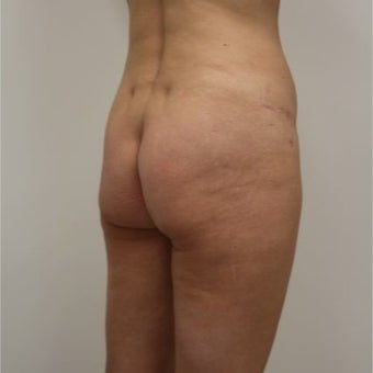 35-44 year old woman treated with Butt Implants 1768719