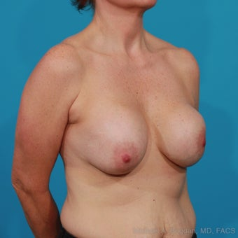 Implant Removal, Capsulectomy, Breast Lift 1049143