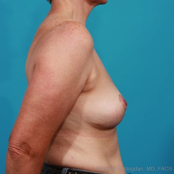 Implant Removal, Capsulectomy, Breast Lift after 1049143