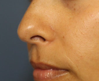 30 year old woman for mole removal after 1254659