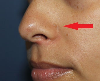 30 year old woman for mole removal before 1254659