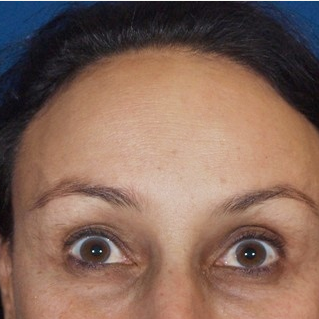 35-44 year old woman treated with Botox after 3202429