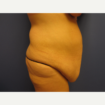 35-44 year old woman treated with Tummy Tuck before 3577627