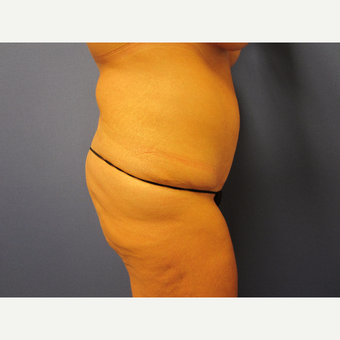 35-44 year old woman treated with Tummy Tuck after 3577627