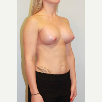 18-24 year old woman treated with Breast Augmentation after 3026726