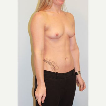 18-24 year old woman treated with Breast Augmentation before 3026726