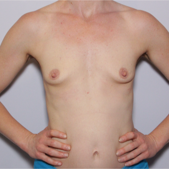 35-44 year old woman treated with Breast Implants before 2813883