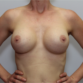 35-44 year old woman treated with Breast Implants after 2813883