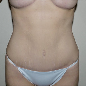 35-44 year old woman treated with Tummy Tuck after 3744878