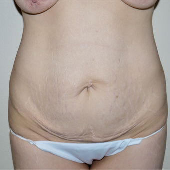 35-44 year old woman treated with Tummy Tuck before 3744878