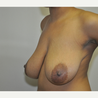 18-24 year old woman treated with Breast Reduction before 3844310