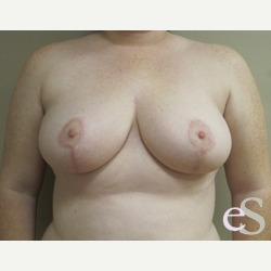 Breast Reduction after 3373514