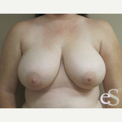 Breast Reduction before 3373514