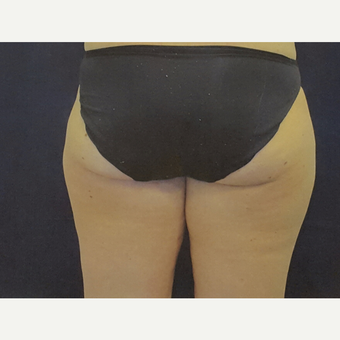 35-44 year old woman treated with Liposuction before 3375869