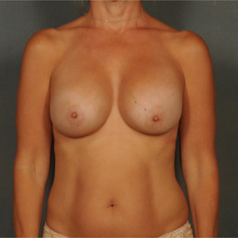 45-54 year old woman treated with Breast Implants after 3464983