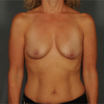 45-54 year old woman treated with Breast Implants before 3464983