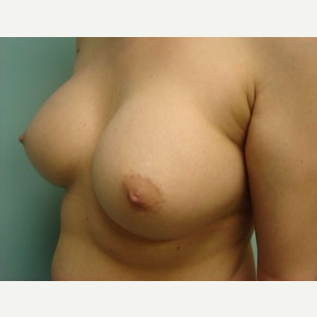 35-44 year old woman treated with Breast Augmentation after 3167954