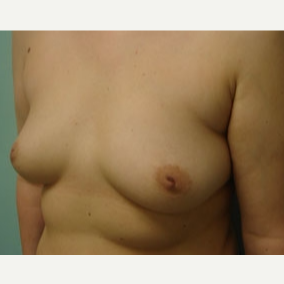 35-44 year old woman treated with Breast Augmentation before 3167954