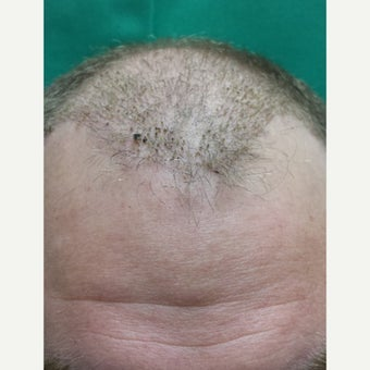 Our NeoGraft Patient's Journey —Day #14 Post Procedure after 1717031