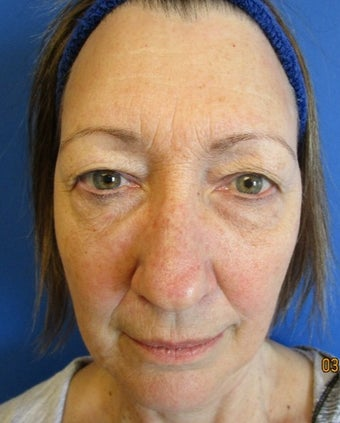 Woman treated with upper and lower transconjunctival blepharoplasty with simultaneous fractional CO2 laser resurfacing before 1982018