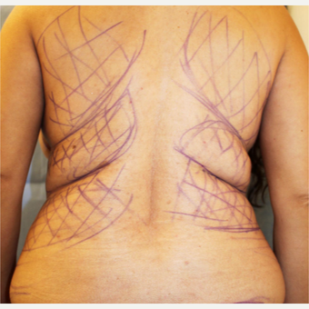 55-64 year old woman treated with Liposuction before 3266017