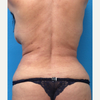 55-64 year old woman treated with Liposuction after 3266017