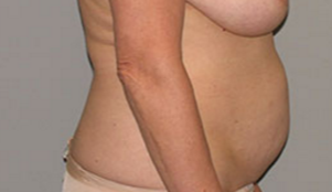 55-64 year old woman treated with Tummy Tuck before 3282372