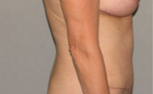 55-64 year old woman treated with Tummy Tuck after 3282372