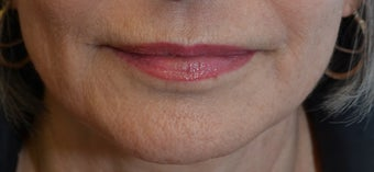 60 year old female treated with SkinPen series after 1129990