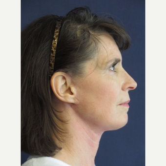 55-64 year old woman treated with Facelift after 3743032