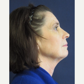 55-64 year old woman treated with Facelift before 3743032
