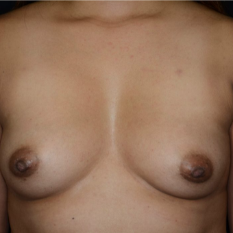 25-34 year old woman treated with Breast Augmentation before 3099088