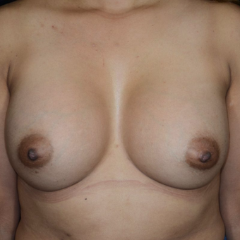 25-34 year old woman treated with Breast Augmentation after 3099088