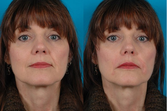52-year-old woman treated with Restylane™. before 574583