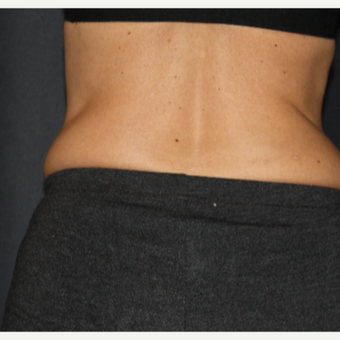 35-44 year old woman treated with SculpSure before 3299279