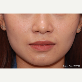 25-34 year old woman treated with Jaw Reduction after 3624470