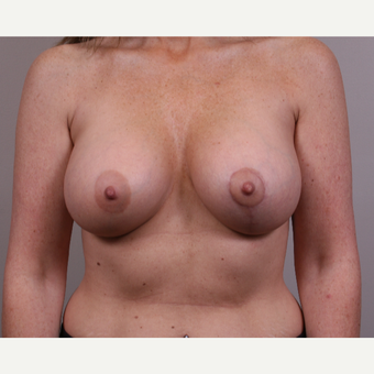 45-54 year old woman treated with Breast Lift with Implants after 3142040