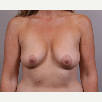 45-54 year old woman treated with Breast Lift with Implants before 3142040