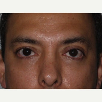 35-44 year old man treated with Eye Bags Treatment after 2359620