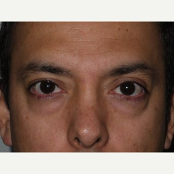 35-44 year old man treated with Eye Bags Treatment before 2359620