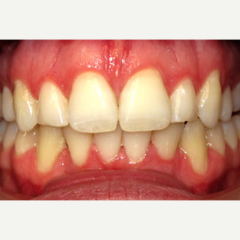 Invisalign after 1786056