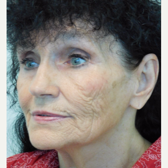 65-74 year old woman treated with Fractional Laser before 3489365
